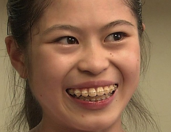 miyahara tomoko 006 e1427369210759 - 宮原知子の昔がブサイクすぎる!腹筋がバキバキ!回転不足を見逃し?