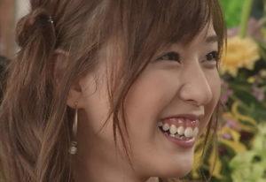 戸田恵梨香,歯茎 治した,彼氏 歴代,ダイエット方法,痩せすぎ 理由
