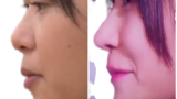 61110d9814477bfeb1c61df0e88006ce removebg 160x90 - 指原が整形で完全に顔と鼻が変わった!笑顔が完全にできてない!