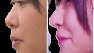 61110d9814477bfeb1c61df0e88006ce removebg 320x180 - 指原が整形で完全に顔と鼻が変わった!笑顔が完全にできてない!