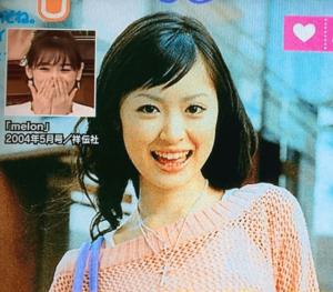 izumirika4 300x263 - 泉里香は絶対に整形!整形外科に行っている!芸名を3回も改名してた
